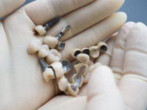 اجزای ایمپلنت دندان 9494991494