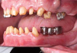 علایم جوش نخوردن ایمپلنت دندان چیست 325147