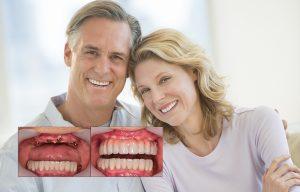 بهترین روش جایگزین کردن دندان 64949494944
