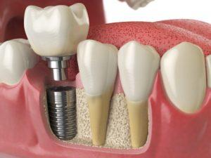 نحوه انجام ایمپلنت دندان چگونه است 494944794949