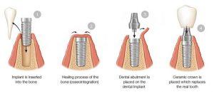 ایمپلنت دندان چقدر طول می کشد 64894949494