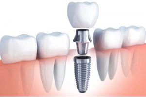 اجزای ایمپلنت دندان 941848484