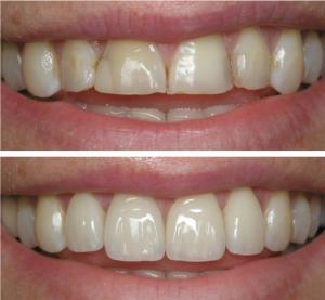 لمینت بهتر است یاکامپوزیت دندان 6548754312