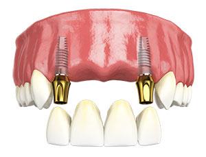 ایمپلنت چند دندان با هم 24796