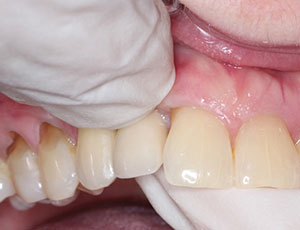 علل لق شدن ایمپلنت دندان 2154865123023