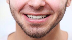 سن مناسب برای لمینت دندان 41453463