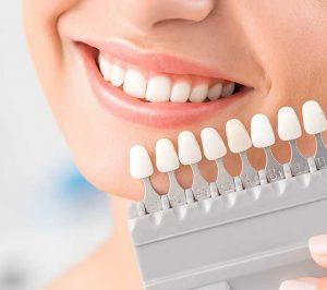 مراحل لمینت دندان 231548567485