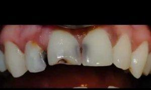 لمینت دندان پوسیده 21564685420