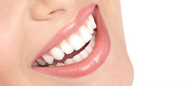 لمینت دندان چند جلسه زمان نیاز دارد 12049745230