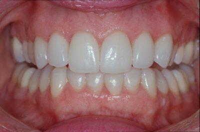 لمینت دندان شکسته 41564510012320