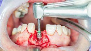 ایمپلنت دندان فوری 164694694964