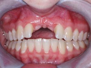 چند سال بعد از کشیدن دندان می توان ایمپلنت کرد 124902