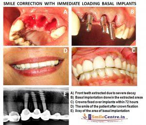 علایم جوش نخوردن ایمپلنت دندان چیست 154874