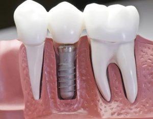 نحوه انجام ایمپلنت دندان چگونه است 494949494000