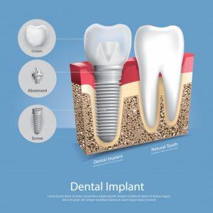 ایمپلنت دندان چقدر طول می کشد 9494949494