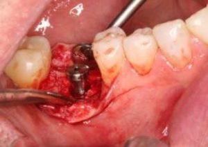 سخت ترین مرحله ایمپلنت دندان  124789