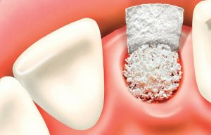 چند سال بعد از کشیدن دندان می توان ایمپلنت کرد 154551