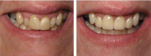 کاندید مناسب برای لمینت دندان  5441578549820