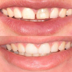 لمینت دندان پوسیده 45547541200