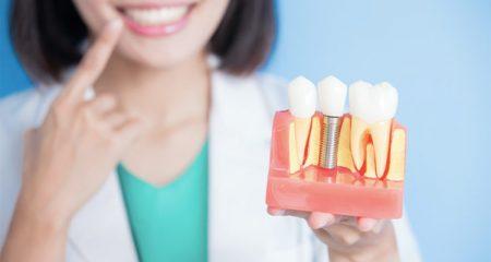 بهترین روش جایگزین کردن دندان 69194894949