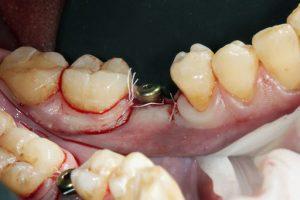 سخت ترین مرحله ایمپلنت دندان  5478793