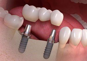 ایمپلنت چند دندان با هم 245963