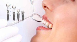 ترمیم ایمپلنت دندان 215478960