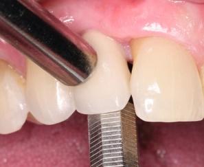 علل لق شدن ایمپلنت دندان 20321032152487451
