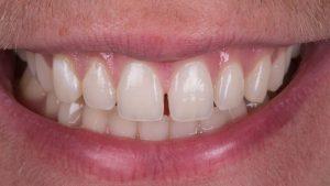 کامپوزیت دندان فاصله دار  6959+659+6522231023