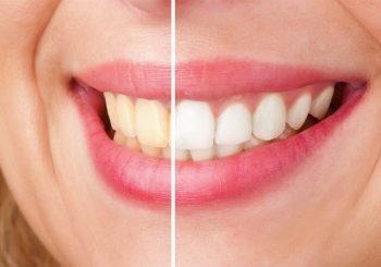 علل تغییر رنگ کامپوزیت دندان 4521875453223112