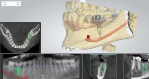 ایمپلنت دندان دیجیتالی 132658886523100278