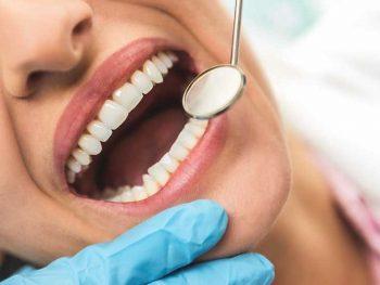 ماندگاری لمینت دندان 415645132