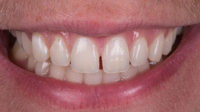 لمینت دندان فاصله دار 146541564845420