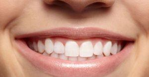 لمینت دندان نامرتب  213456453123135