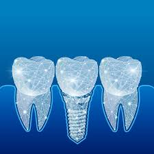 ایمپلنت دندان دیجیتالی 45645644658460032588