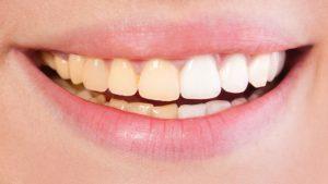 کامپوزیت ونیر دندان زرد  212354156454312