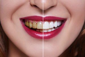 مزایای لمینت دندان 219784566520314120