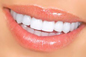 مراقبت از لمینت دندان  13212875485465212