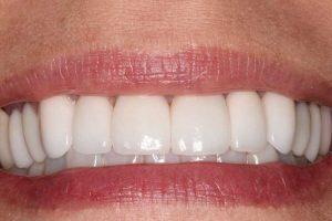 ماندگاری لمینت دندان 21997643052138