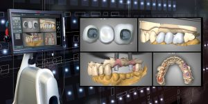 ایمپلنت دندان دیجیتالی 5465783221230352654