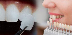 زیبایی خارق العاده لبخند با لمینت سرامیکی دندان 3265564531345