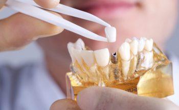 کاشت دندان چگونه انجام می شود 566468024876