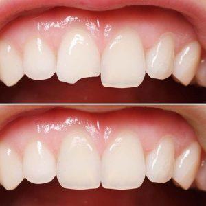 لمینت دندان لب پر شده امکان پذیر است 41355232131