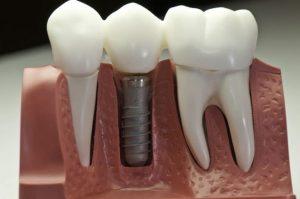 چه زمانی به تعویض ایمپلنت دندان نیاز است؟ 98878754