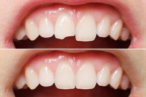 زیبایی خارق العاده لبخند با لمینت سرامیکی دندان 5154784321324685