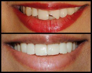 لمینت دندان لب پر شده امکان پذیر است 65665346