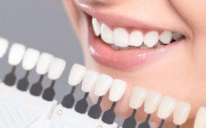 مراحل کامپوزیت دندان  455475415456