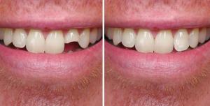 کامپوزیت دندان شکسته 21544451654658454