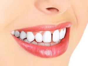 کامپوزیت دندان خرگوشی چگونه انجام می شود 21231453487797845131
