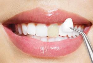 لمینت دندان تغییر رنگ داده 15443641200005454